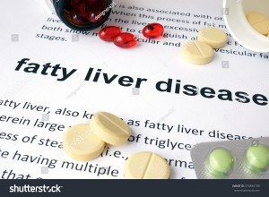 stock-photo-paper-with-fatty-liver-disease-and-pills-medical-concept-274834199